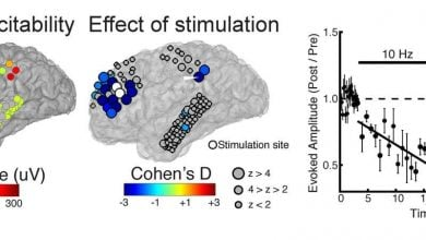 کشف تکنیک غیرتهاجمی برای اختلالات عصبی