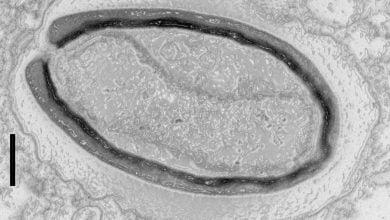 پاندوراویروسها ژنهای خود را میسازند