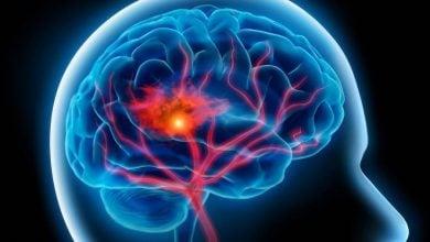 تولید دارو علیه انسداد شرایین مغز