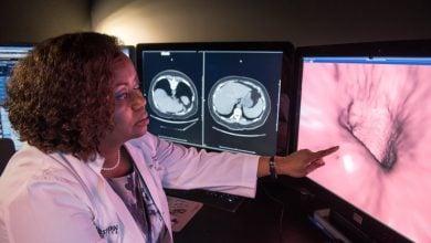 Photo of کولونوسکوپی مجازی، روشی برای تشخیص سرطان روده بزرگ