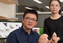 تأثیر خون بر روی مغز