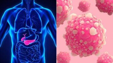 Photo of کشف شش ژن مستعد سرطان پانکراس