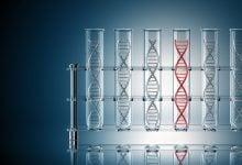 Photo of پیشبینی آغاز روماتیسم مفصلی به کمک زیست نشانگرها