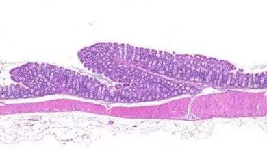 ارتباط استروژن با ابتلا به بیماریهای خودایمنی