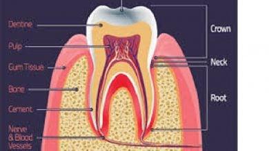 بازسازی مینای دندان