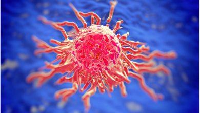 Photo of دانش جدید از نحوه تشکیل تومور سرطانی