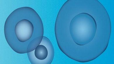 ایمونوتراپی سرطان سینه منفی سهگانه