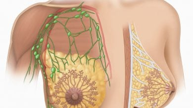 Photo of اصلاح RNA و نابودی سلول های سرطانی پستان
