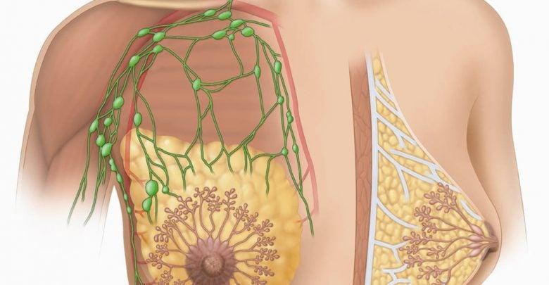اصلاح RNA و نابودی سلول های سرطانی پستان