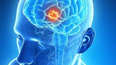 Photo of رشد دادن سلولهای سرطانی مغز در پتری دیش!