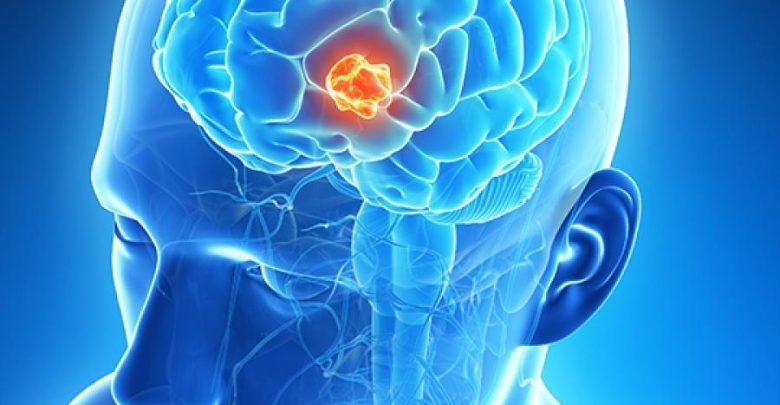 رشد سرطان مغز