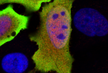 Photo of آیا ژن جدید، معماهای سیستم ایمنی ما را حل میکند؟