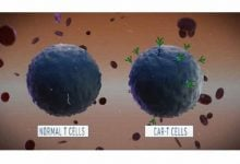 """Photo of CAR-T Cells Just Got Some """"Killer"""" Competition"""