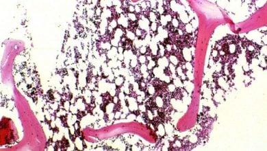 Photo of ژنی برای کنترل نسبت استخوان به چربی در مغز استخوان