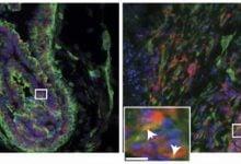 Photo of فیبرونکتین، افزایش دهنده فعالیت استروژن