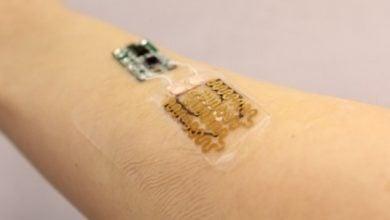 Photo of باندهای هوشمند برای مراقبت و درمان مناسب زخمهای مزمن