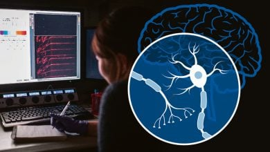 Photo of Researchers identify gene that helps prevent brain disease