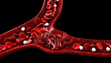 Photo of Treatments for cancer and sickle cell disease deplete germ cells in young boys