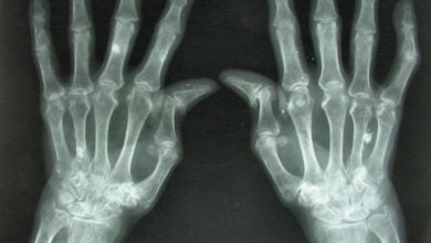 Photo of 3D-printed living tissues could spell the end of arthritis