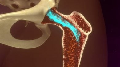 Photo of Artificial Bone Marrow Supports Blood Stem Cells for Disease Modelling and Drug Discovery