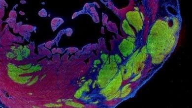 بازیابی قلب با سلول بنیادی