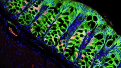 Photo of Colon Stem Cells Rely on This Repair Signal, but It Can Go Awry