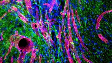 Photo of Biogel Promotes Brain Tissue Growth and Limb Recovery after Stroke in Mice