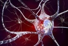 Photo of درک بهتر بیماری پارکینسون به کمک تصویربرداری 3D