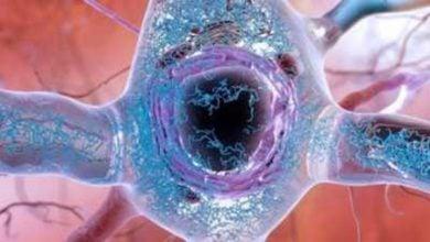 Photo of کشف ژنهای بیماری آلزایمر