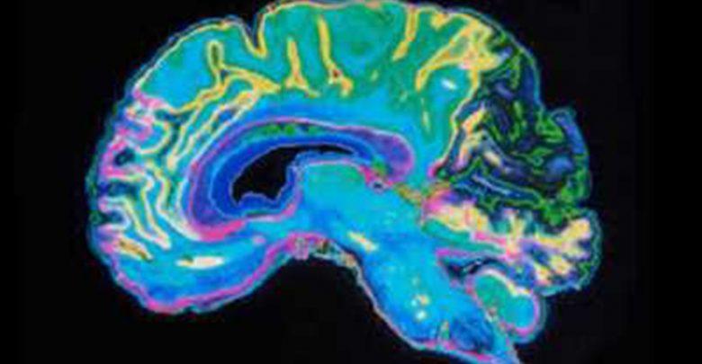 جانبی شدن کارکردهای مغز