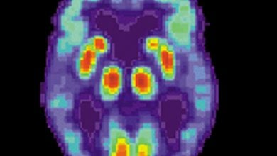 Photo of First practice guidelines for clinical evaluation of Alzheimer's disease