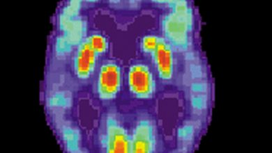 Photo of Research reveals how Tau aggregates can contribute to cell death in Alzheimer's disease
