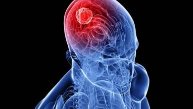 نقش ژنها در تومورهای مغزی