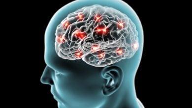 Photo of نشانگری زیستی برای ارزیابی سریع آسیب مغزی تروماتیک
