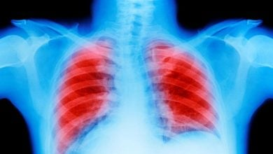 Photo of Biomarker-Based Blood Test May Extend Reach of CT Screening for Certain Lung Cancers