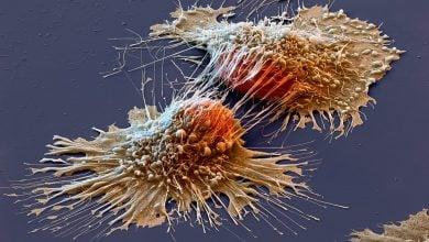 cancer drug delivery