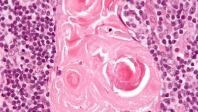 Photo of Gut Cells and the Immune System Curriculum