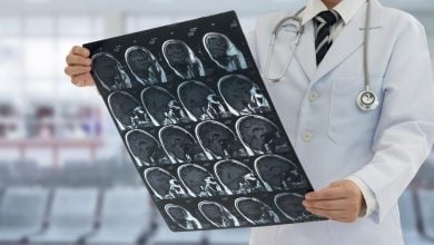 Photo of Immunotherapy Boosts Survival Rates of Melanoma Brain Metastases' Patients