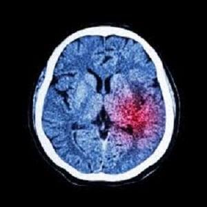 توانبخشی بیماران سکته مغزی