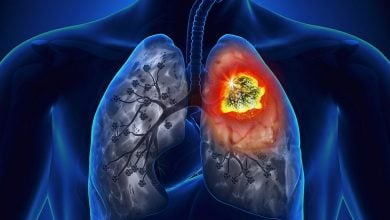Photo of Cell Network Study Shines Light on Lung Cancer Signal Pathways