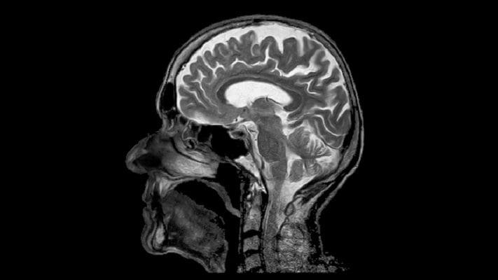 درمان اسکیزوفرنی با MRI