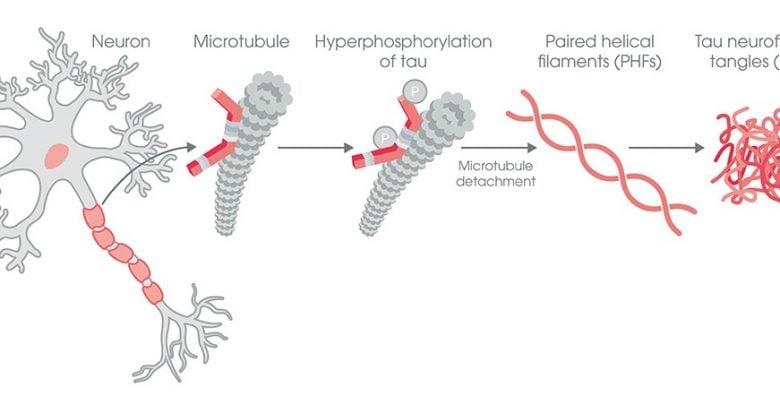 تجمع Tau در نورونها و فعالیت transposable element