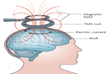 تکنیک غیرتهاجمی بیماری های مغزی