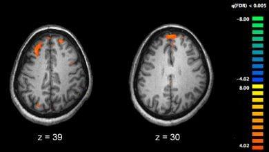 Photo of Cell Types Underlying Schizophrenia Identified