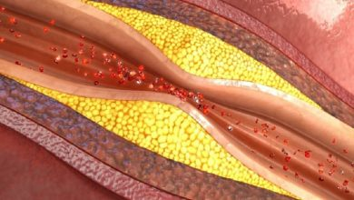 Photo of Computational models provides genetic insight into atherosclerosis