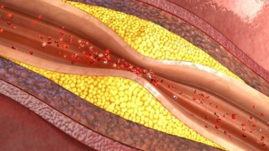 بیماری اسکلروزیس