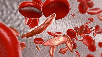 Photo of Enzyme identified as possible novel drug target for sickle cell disease, Thalassemia