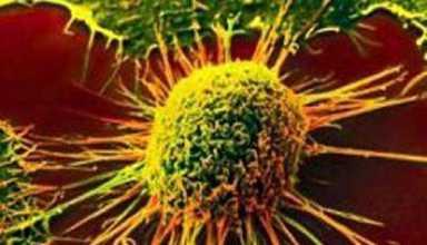 راهکار جدید برای درمان سرطان کلیه