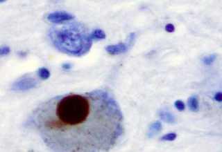 درمان پارکینسون با سلولهای ایمنی