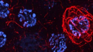 Photo of مرگ سلولی در اووسیت C.elegans